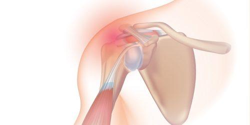 Utesnitveni sindrom v rami anatomija